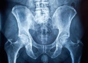 Radiografia (RX)