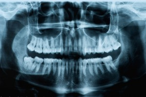 Ortopantomografia e Teleradiografia
